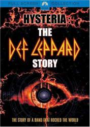 Hysteria: The Def Leppard Story picture